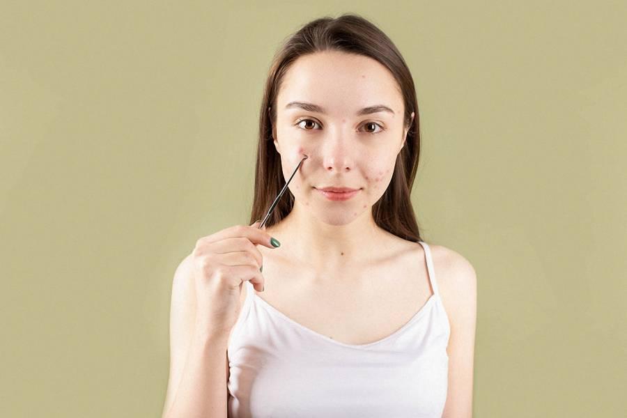 Naturalne Metody Pielęgnacji Skóry Trądzikowej